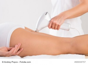 Die ELOS®-Epilation zur Haarentfernung an den Beinen in der Anwendung