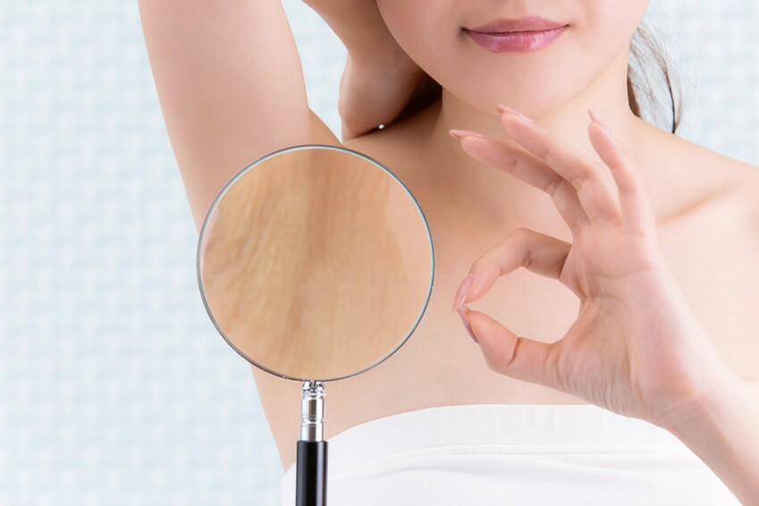 """Nach der Haarentfernung mit der ELOS® Methode ist die Haut frei von """"Stoppeln"""", die sonst oft nach dem Rasieren zu sehen sind (Foto: Fotolia)."""