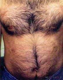 Dauerhafte Haarentfernung am Bauch.