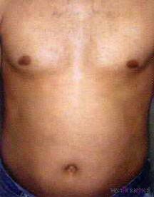 Haarentfernung am Bauch nach 4 Behandlungen. Bilder von der Firma zur Verfügung gestellt.