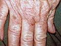 Die Pigmentflecke auf der Person vom Wirrwarr zu entfernen