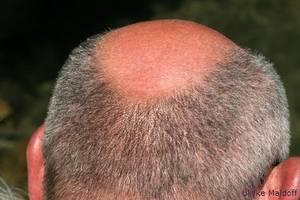 Im Alter stellt sich Haarausfall ein.