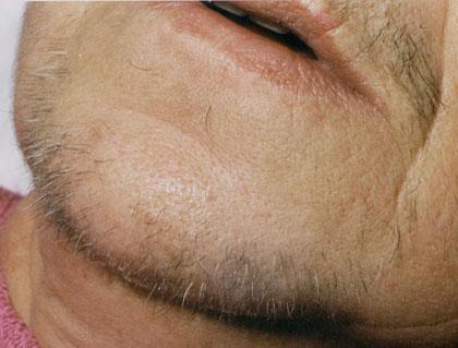 Behandlungsablauf: graue und braune Haare vor Behandlungsbeginn.