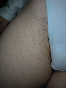 Überbehaarung an den ganzen Beinen. Zuviel Haare an den Oberschenkeln, aber besonders im Bikinibereich.
