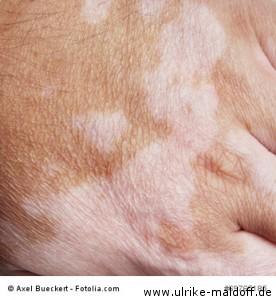 weiße Flecke auf der Hand