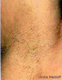 Haarentfernung im Achselbereich - vorher