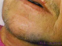 Behandlungsablauf bei grauen Haaren.