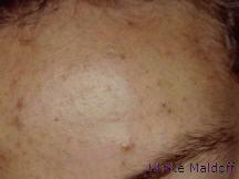 Behandlung von Akne zur Vorbeugung von Narben