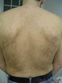 Starker Haarbewuchs auf dem Rücken, vorher.