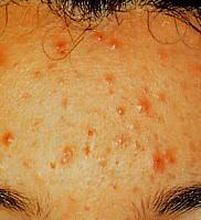 Mikrodermabrasion bei starker Akne