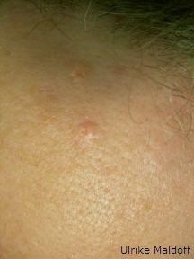 Entfernung von Hautunreinheiten sorgt für eine bessere Ästhetik