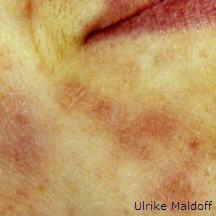 dermatologische Hautpflege